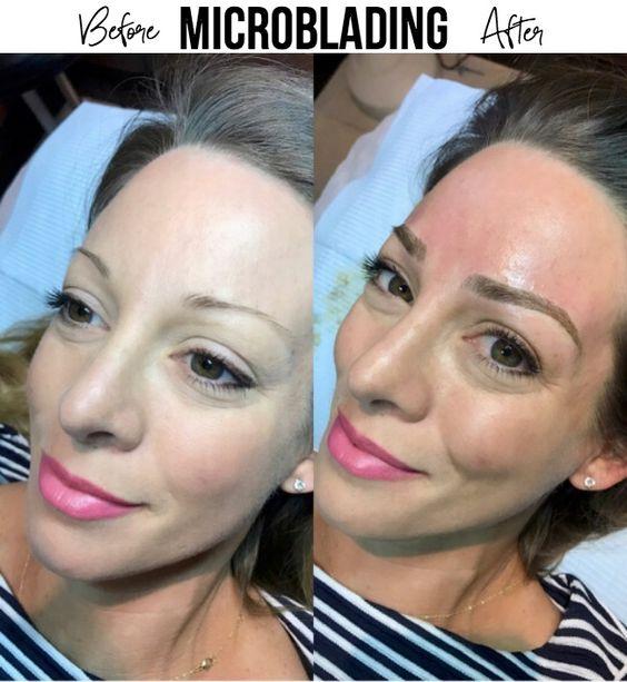 Avant et après l'opération : Vous aurez des sourcils magnifiques