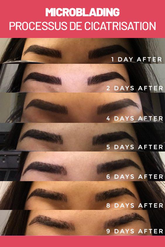 Processus de cicatrisation après microblading des sourcils.